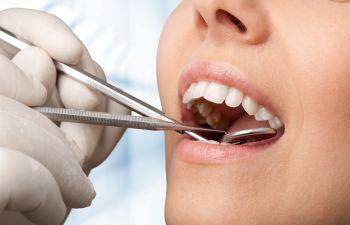 Teeth checkup Johns Creek, GA