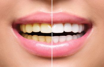 Teeth whitening before / after Johns Creek, GA