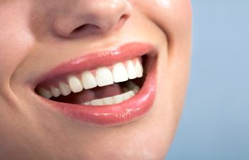 Nice Smile Cosmetic Dentist Johns Creek GA