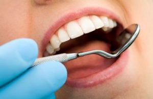 Dental Procedure Johns Creek GA