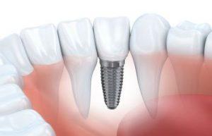 Implant Johns Creek GA