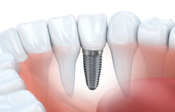 Implant Johns Creek GA